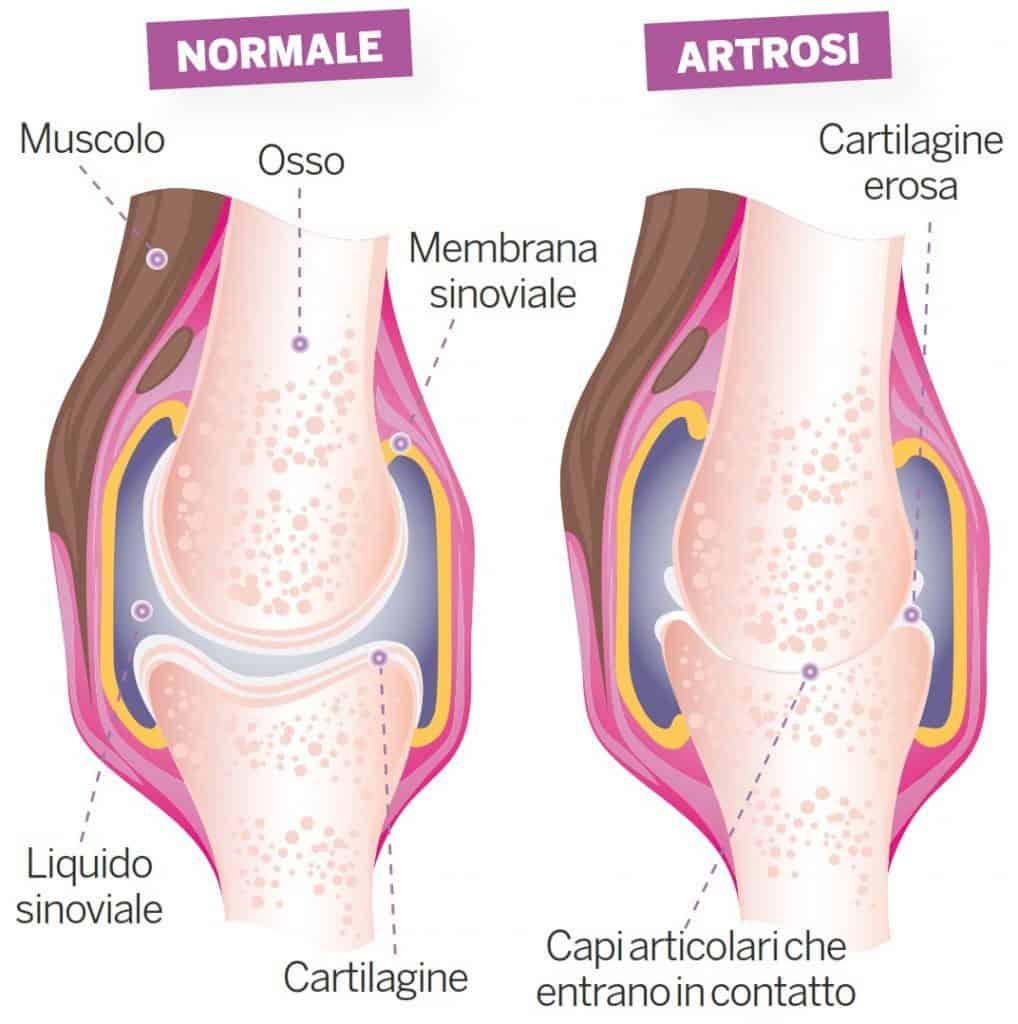 Le giunture fanno male quando si cammina dopo la seduta. Le domande più frequenti sulle onde d'urto