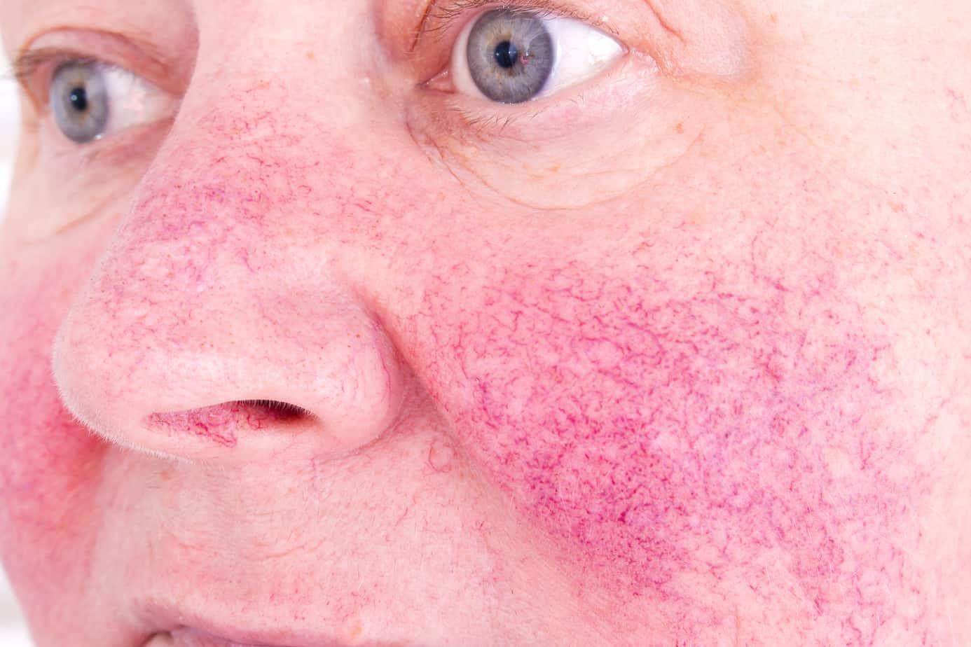 viso di una donna con rosacea