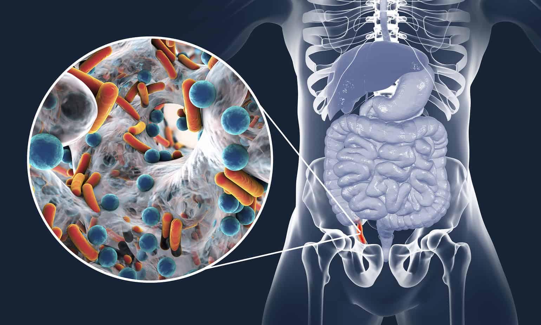 disegno del corpo umano con appendicite