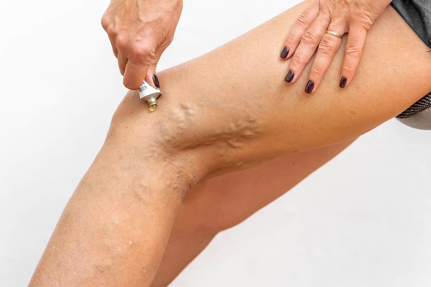 applicazione di una crema contro le vene varicose