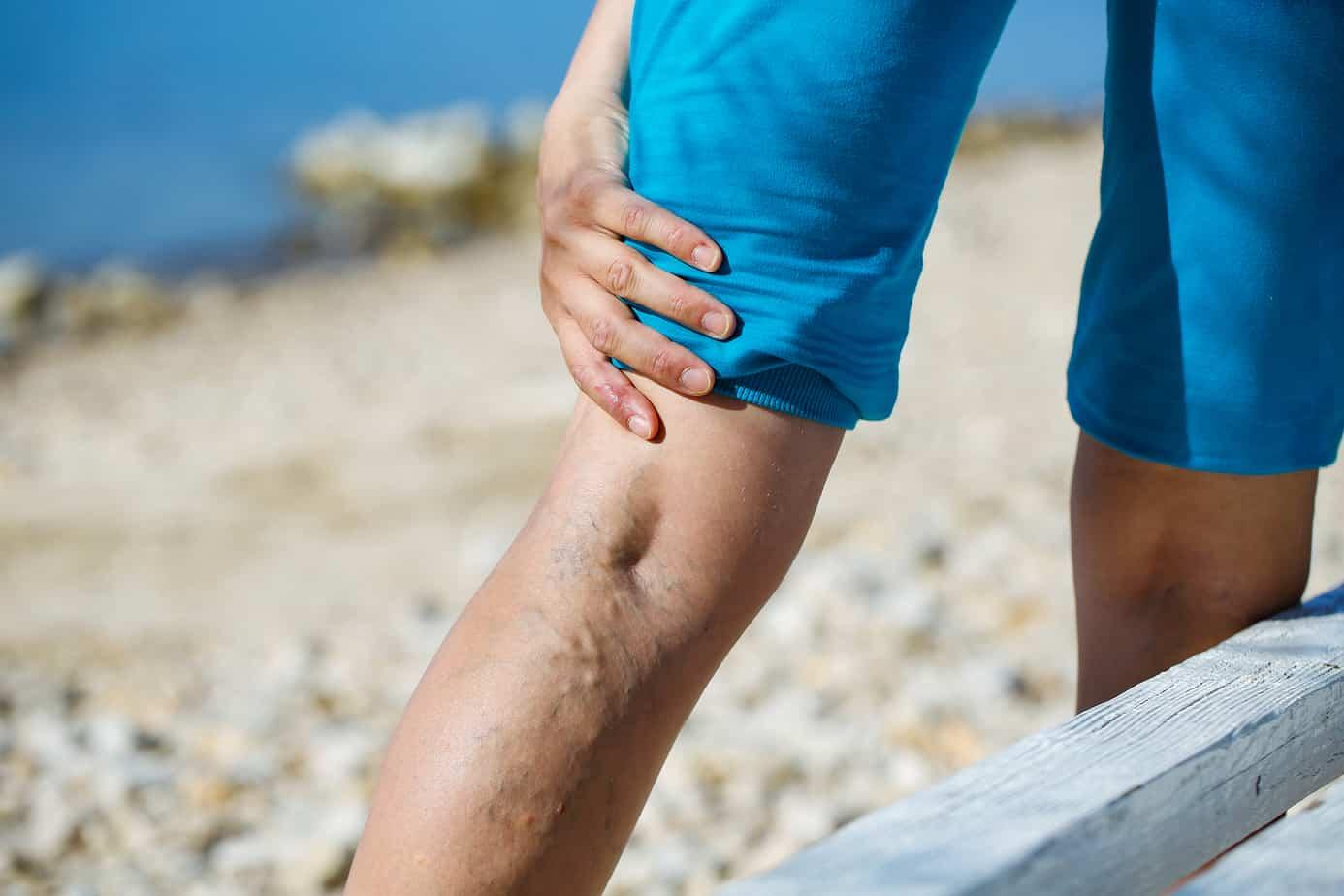 vene varicose dolorose di una donna sulla spiaggia